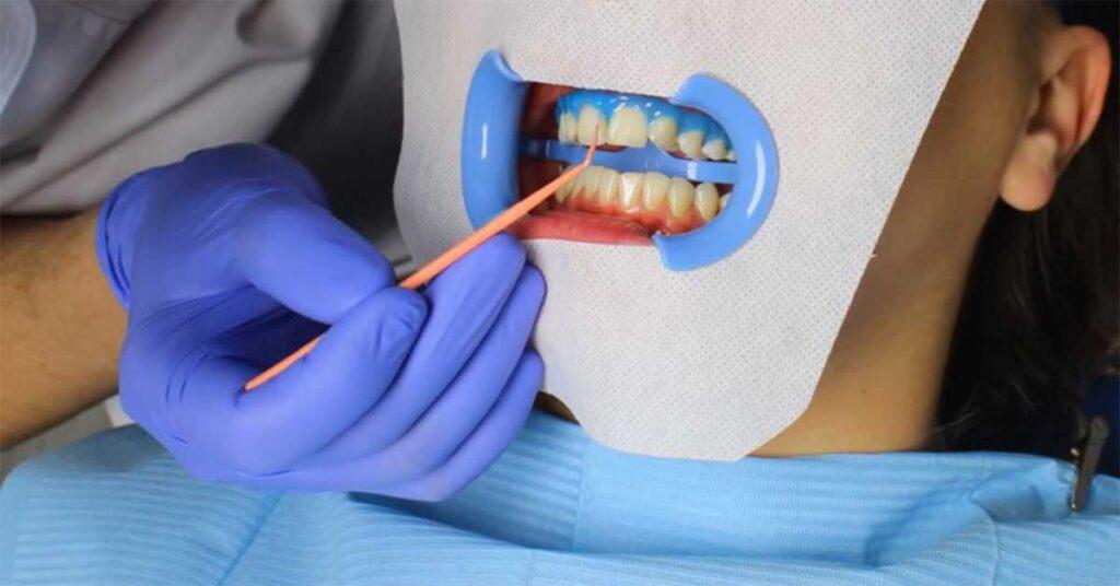 Основные преимущества отбеливания зубов