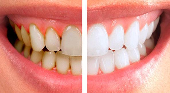 Чистка зубов ультразвуком и Air Flow