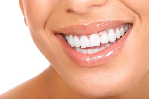 Современные виды и методы отбеливания зубов