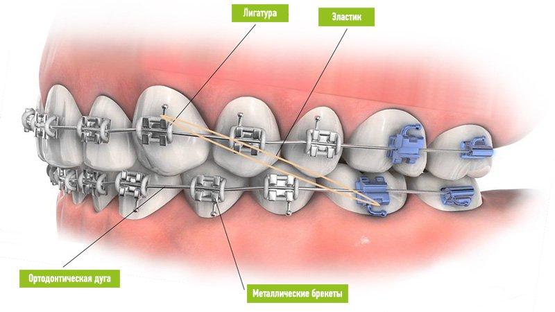 Металлические брекеты