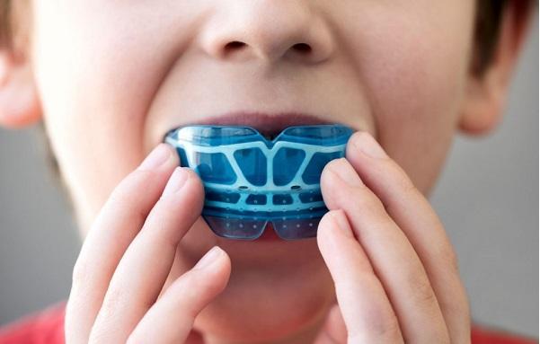 Ортодонтические трейнеры для зубов
