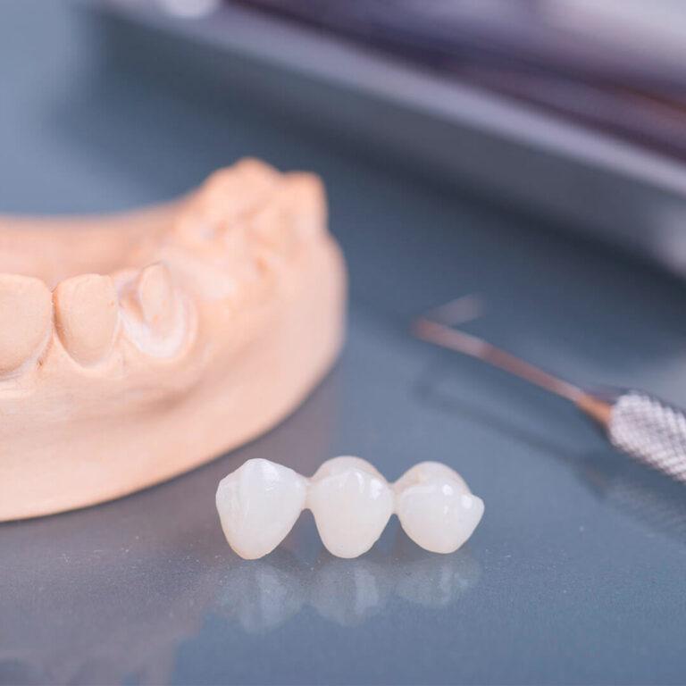 Мостовидный протез зубов
