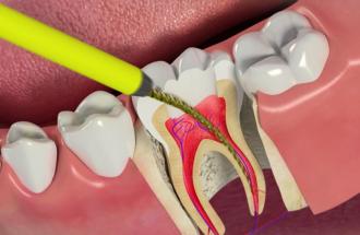 как лечат каналы зубов
