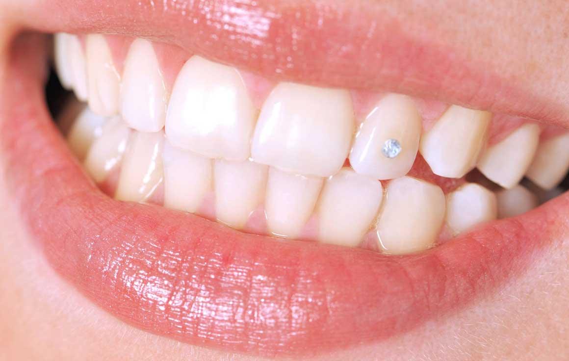 Установка скайс и страз на зубы